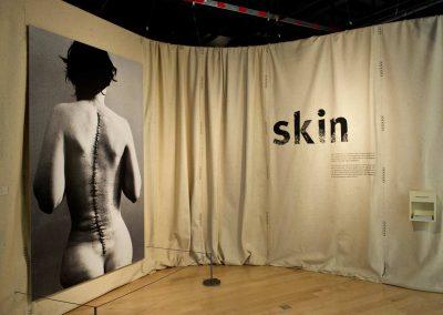 2010_Skin_Londres_foto01_JMASOC